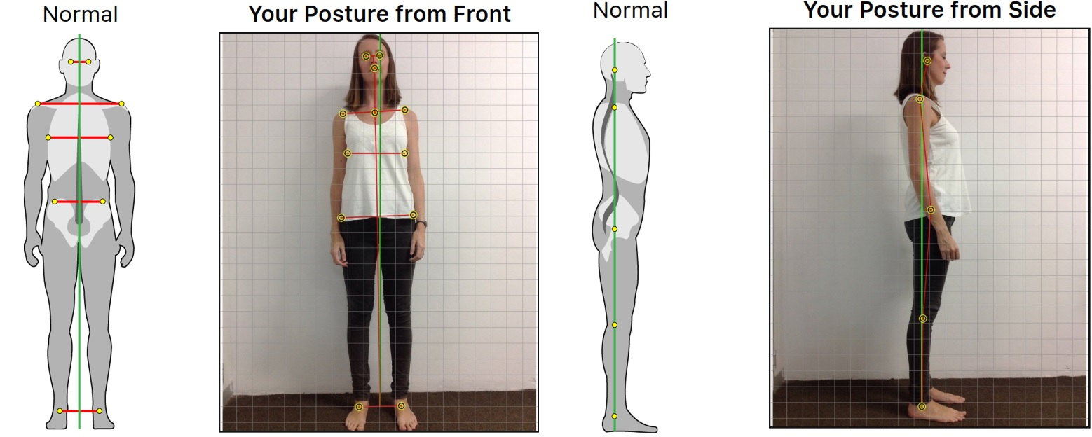 Durban Chiropractic Posture Assessment