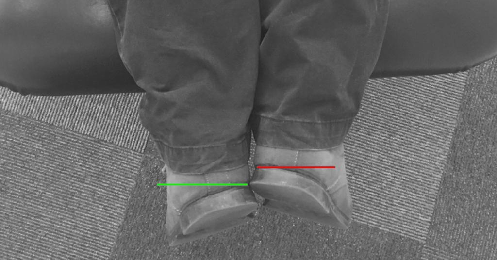 Chiropractor Durban - Short Leg Fix